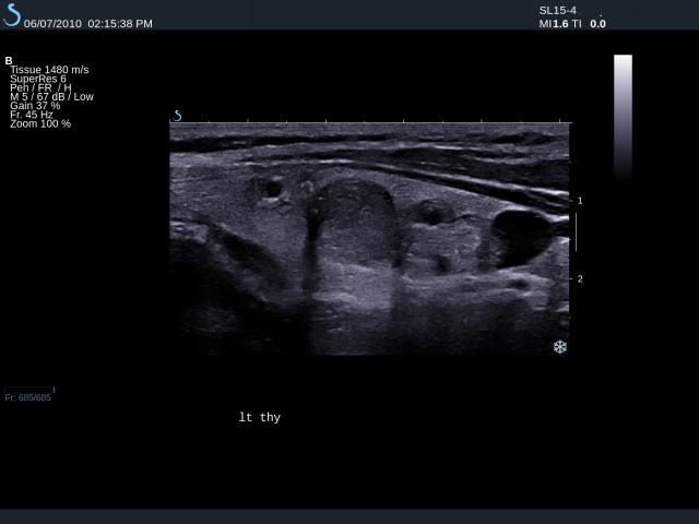 Supersonic Imagine | Ultrasound | ShearWave Elastrography | General