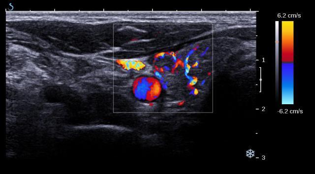 Thyroid Ultrasound Color Doppler