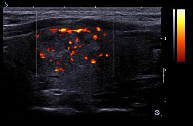 Vascular Thyroid Nodule